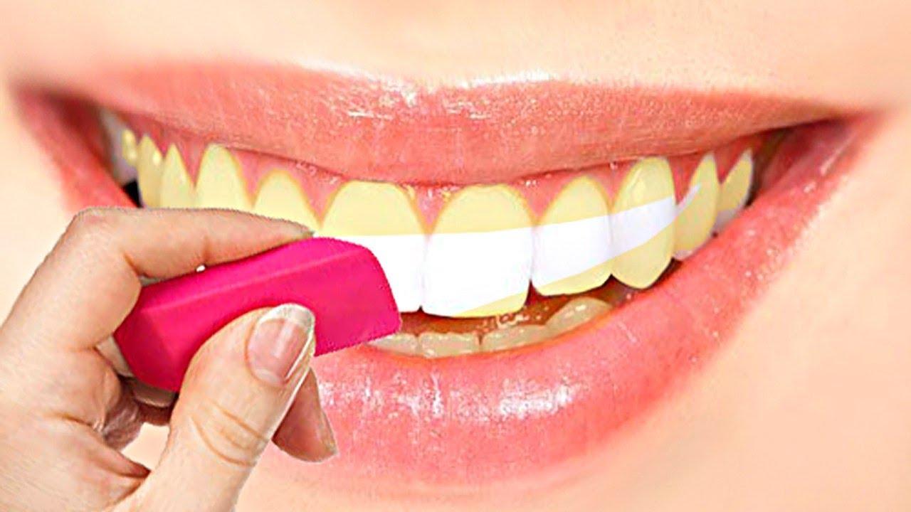 Чем отбеливание зубов в домашних условиях самый лучший способ 196